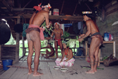 Mentawai medicine men treat a woman with tooth ache using herbs and shamanism. Siberut Island. Indonesia.